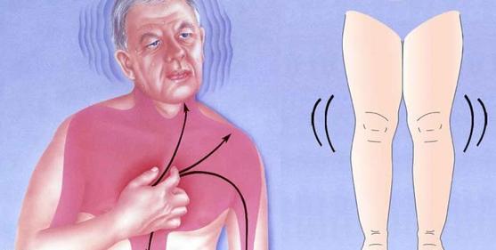Признаки и симптомы, которые могут указывать на сердечный приступ в следующем месяце!