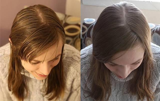 Она отказалась от шампуня на 6 месяцев. И вот результат!