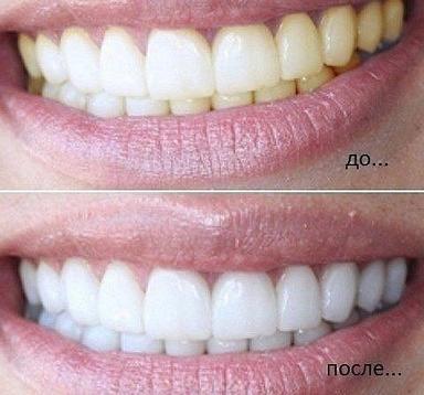 Если добавить эту штуку в зубную пасту, ваши зубы всегда будут белыми!