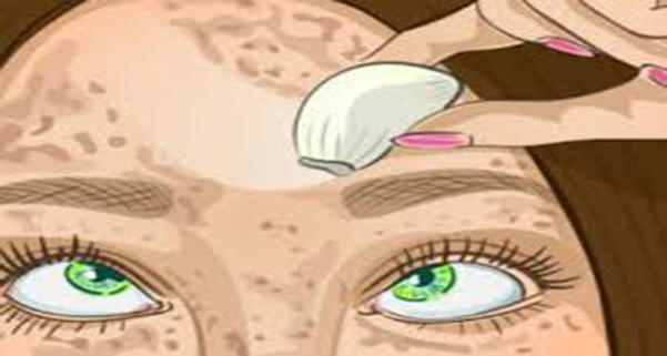 Бабулино средство для идеальной кожи. Стирает пигментные пятна словно ластик!