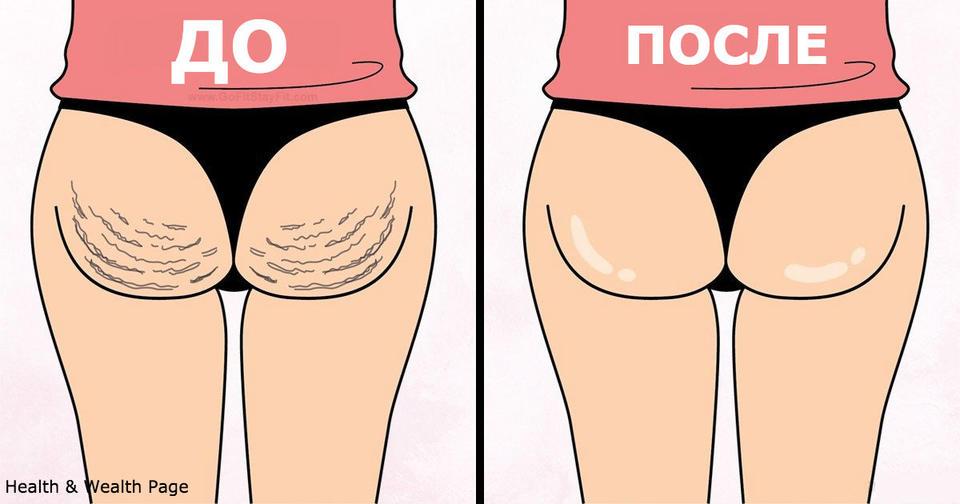 Вот 7 упражнений, чтобы избавиться от целлюлита на ягодицах