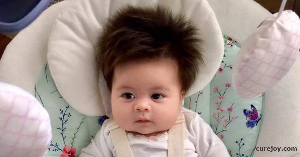 Вот почему некоторые дети рождаются с копной волос на голове