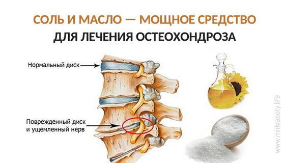 Соль и масло для лечения остеохондроза