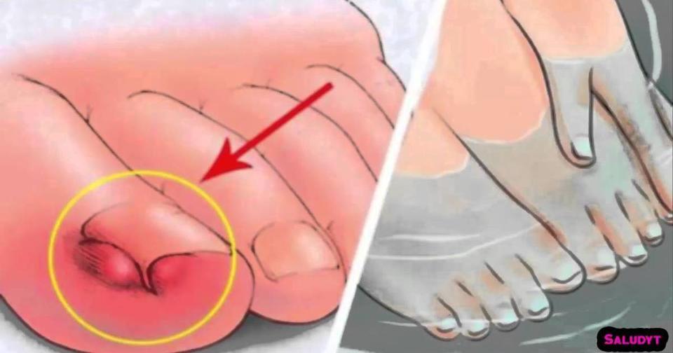 Вот как вылечить вросший ноготь, не выходя из дома: 6 самых действенных методов