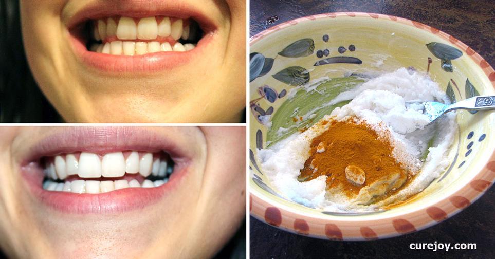 Есть 1 проверенный годами способ отбелить зубы. Попробуете?