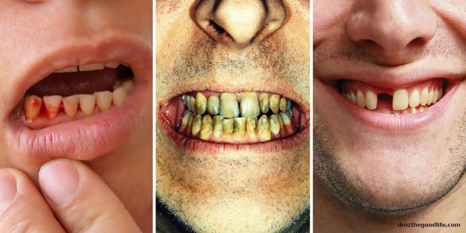 Анемия, диабет, СПИД и другие болезни видно во рту! Вот как проверить...