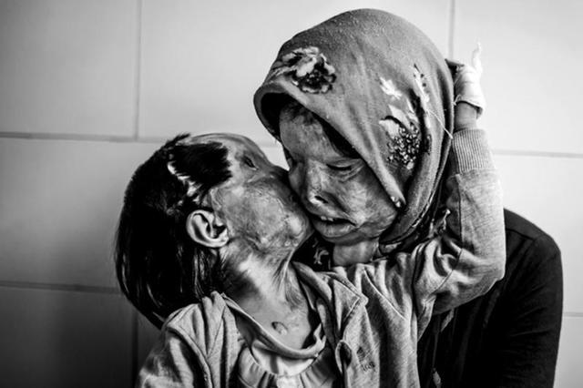 16 проникновенных фотографий, доказывающих, что любовь   самое сильное чувство на планете. Эмоции зашкаливают!