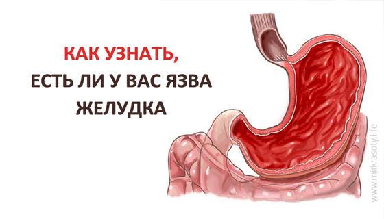 Как определить язву желудка в домашних условиях
