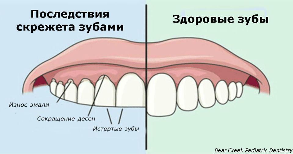 Если вы скрипите зубами по ночам, вот что это значит!