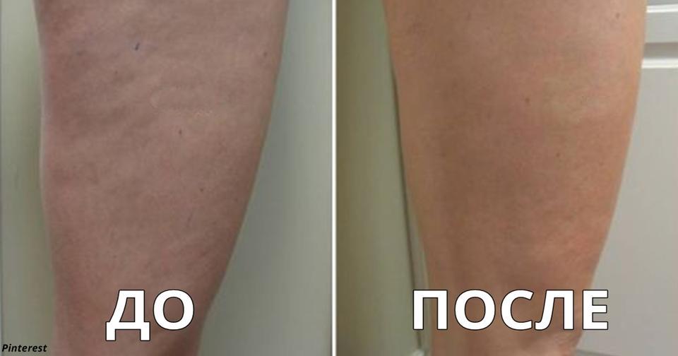 Вот 3 лучших способа подтянуть кожу на шее, руках и бедрах