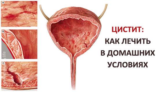 Антибиотики от цистита