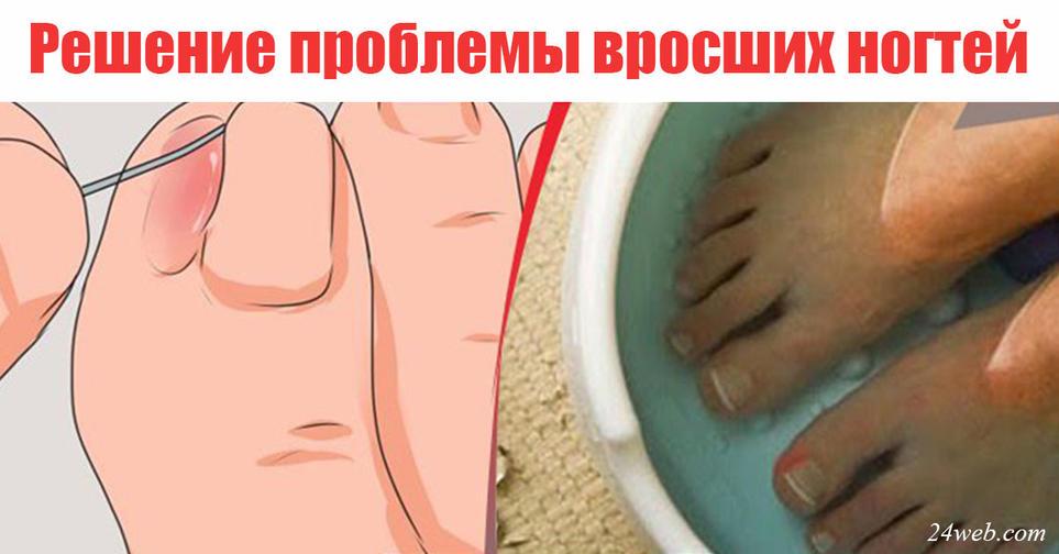 Как снять вросший ноготь в домашних условиях