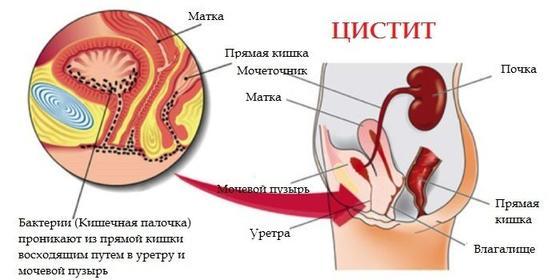 Лечение цистита у женщин: какие таблетки и травы помогут
