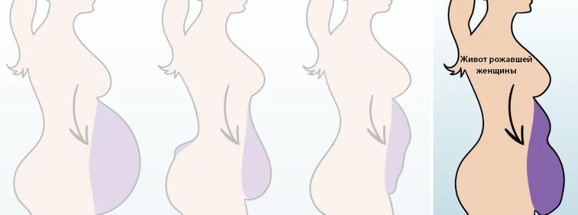 Есть 5 типов женских животиков. Вот как убрать каждый из них!