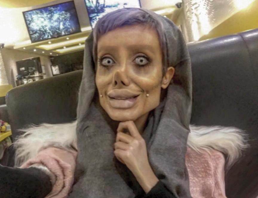 Она сделала 50 операций, чтобы стать похожей на Анджелину Джоли. Вот что получилось