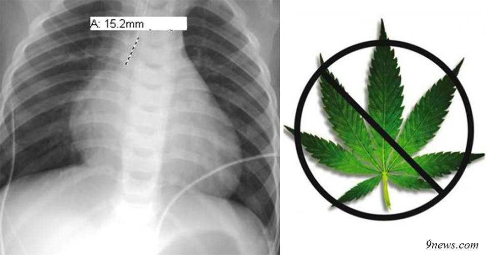 Врачи в Колорадо зафиксировали первую смерть от передозировки марихуаны!