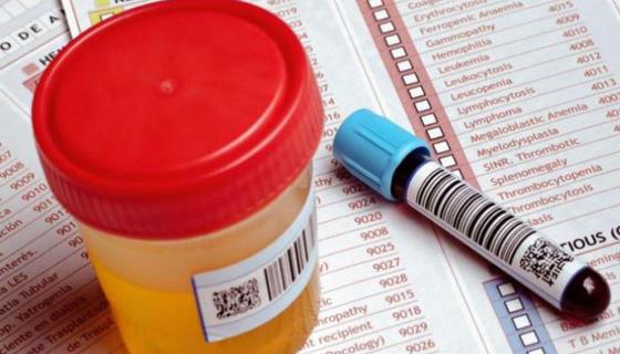 Картинки по запросу Как предупредить болезни? 10 анализов, которые нужно сдать каждому