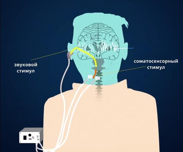 Новое устройство лечит звон в ушах, посылая небольшой электрошок в мозг