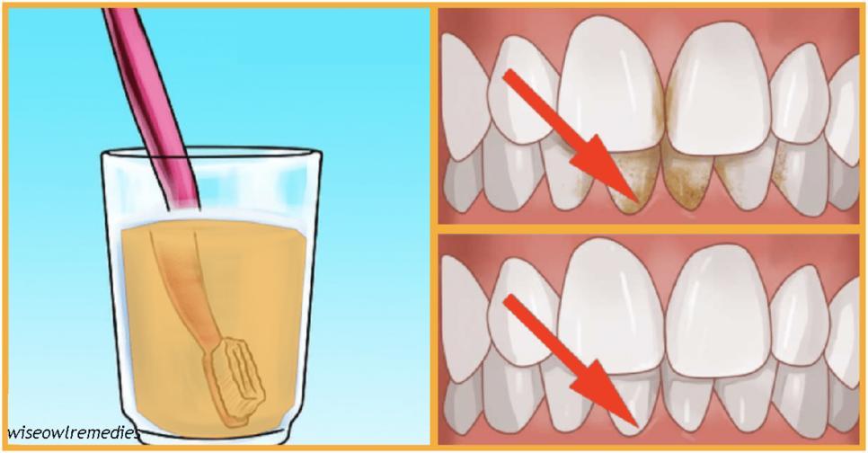Делайте эти 7 вещей   и зубной камень вас не потревожит никогда! Визиты к стоматологу отменяются ;)