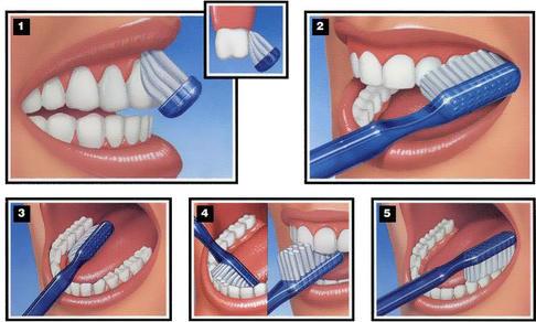 Делайте эти 7 вещей - и зубной камень вас не потревожит никогда! Визиты к стоматологу отменяются ;)