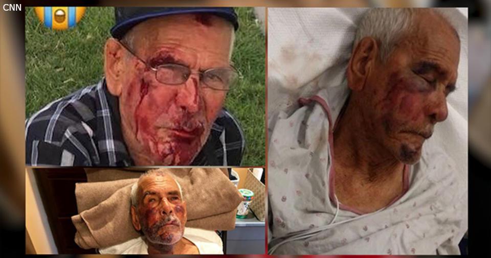 91 летний старик приехал в гости к детям. А там его избили с криками: ″Вали в свою Мексику″... Вселенская несправедливость и бытовой расизм в одном флаконе.