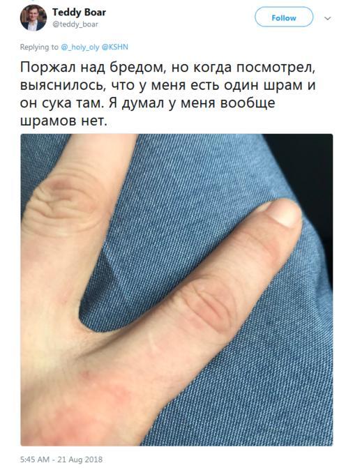 У всех мужчин есть шрам на указательном пальце левой руки! Так ведь?! Новый челлендж.