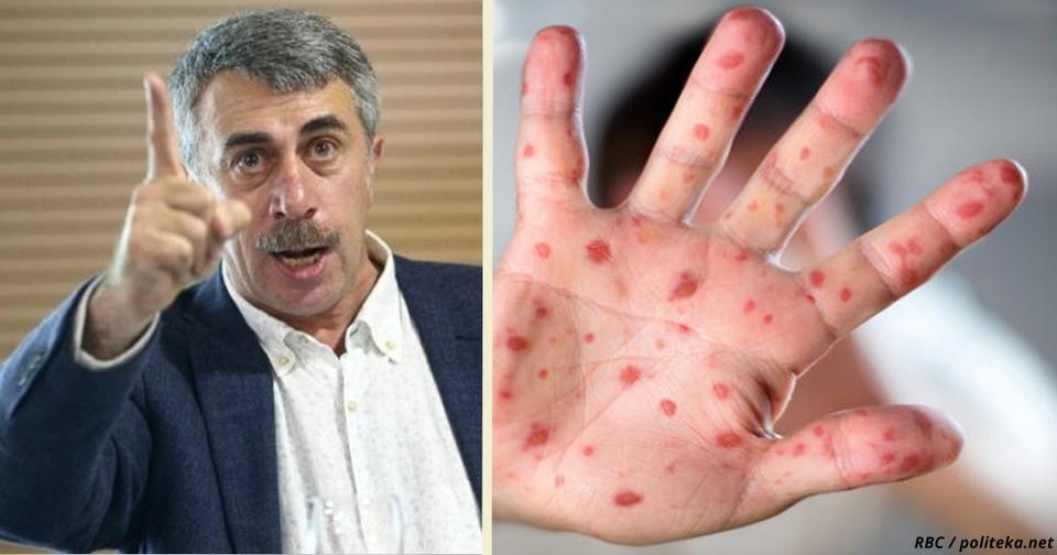 Умрёт каждый 10-й: Доктор Комаровский предупреждает о вспышке новой инфекции Врач, который не ошибается.