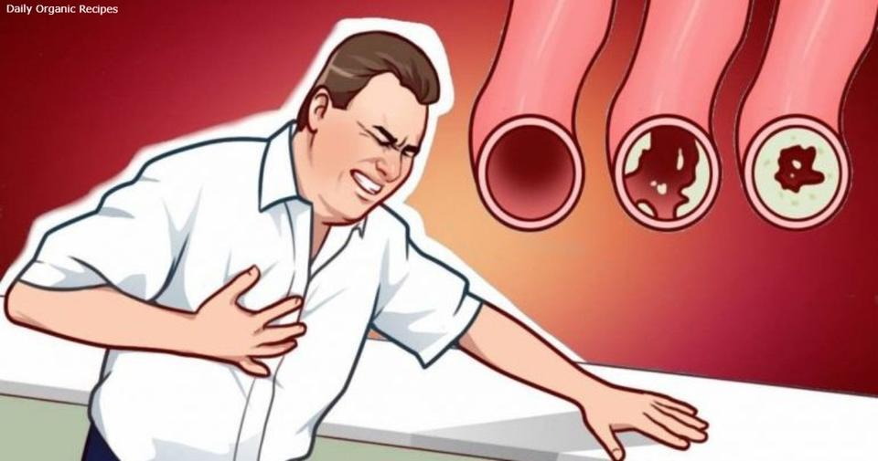 20 продуктов, которые прочистят ваши артерии   и защитят сердце от приступа Они даже полезнее, чем вы думаете.