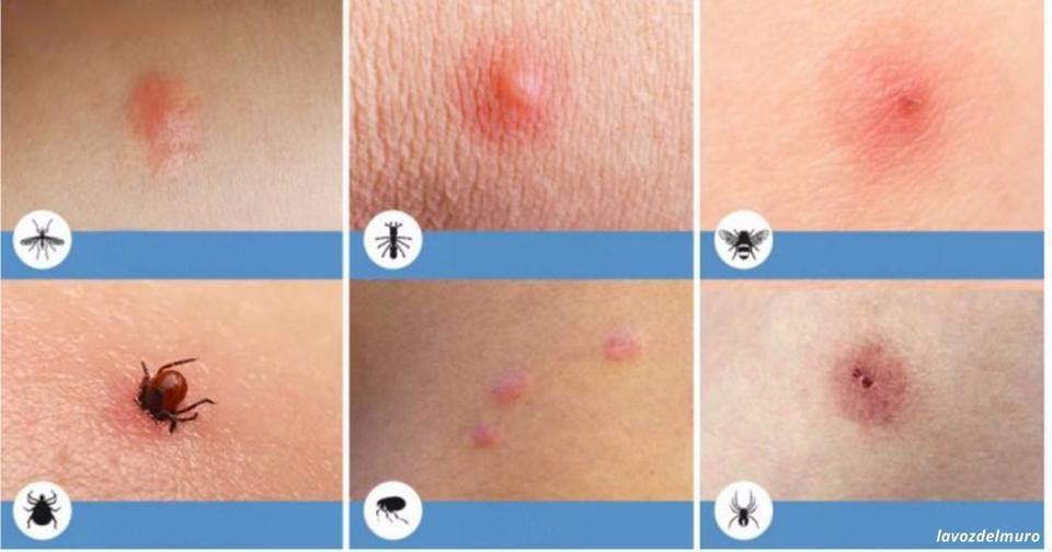 8 видов укусов насекомых, о которых вы просто обязаны знать Особенно, если у вас есть дети.