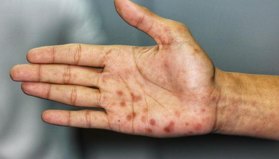 Болезнь сердца: 10 тревожных симптомов, которые будут видны на коже Дерматологи предупреждают!
