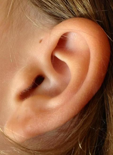 Вот почему некоторые рождаются с крошечными отверстиями в ушах Возможно, именно вы особенные!
