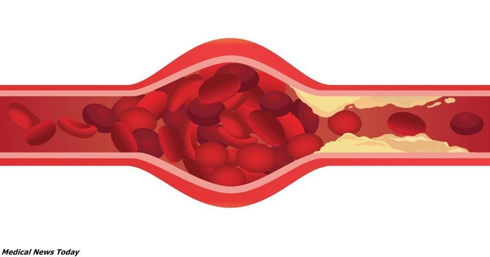 Можно ли избавиться от закупорки артерий? Вот что наука говорит сейчас Новые возможности лечения атеросклероза.