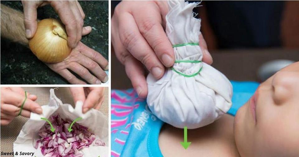12 абсолютно неожиданных способов использовать лук как лекарство Вот он — корень здоровья!