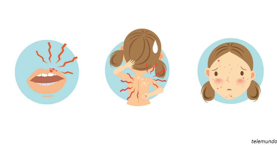 21 сигнал, который подает ваше тело, чтобы вы поняли: стресса стало слишком много И которые многие из нас не замечают.