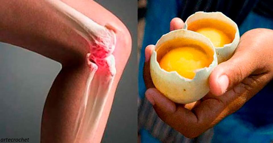 Вот как 2 яйца могут помочь вам избавиться от боли в коленях   и частично исцелить суставы Боль снимет как рукой!