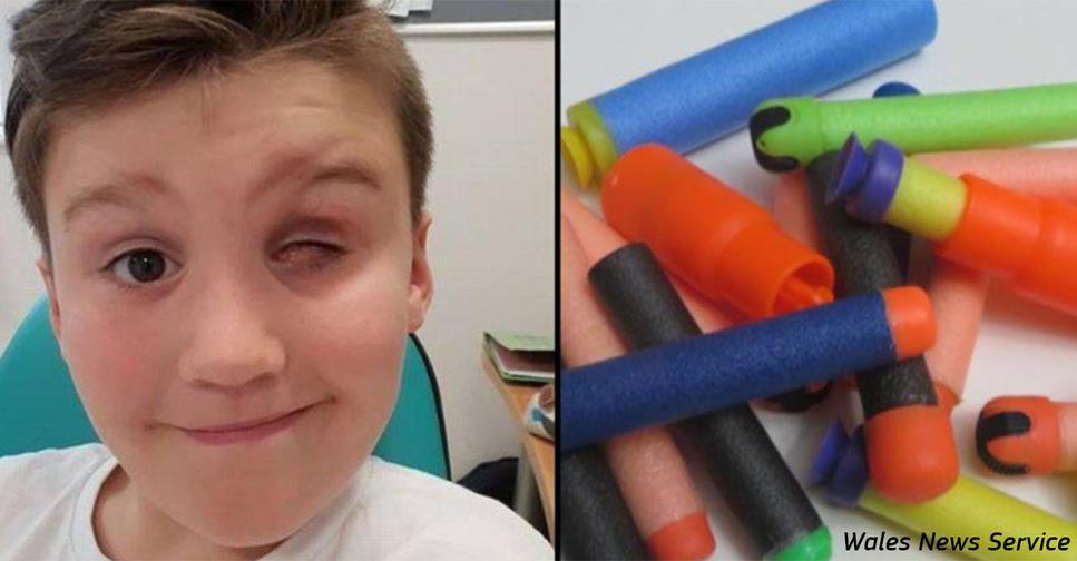 9 летний мальчик лишился глаза из за игрушки, которую сейчас хотят все дети Родители, примите к сведению!