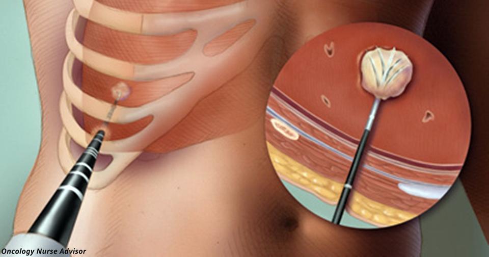 В Украине тестируют прорывной метод в лечении рака: метастазы выжигают иглой