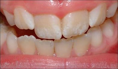 Большинство детей выдавливают слишком много зубной пасты. Вот чем это грозит