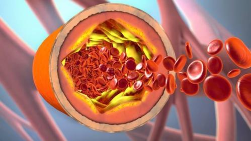″Уровень своего холестерина надо знать так же четко, как пин-код вашей карты″