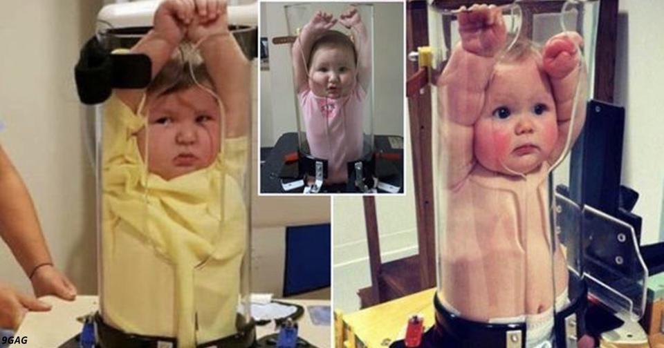 Интернет насмешили фото детей в медицинском чудо устройстве для рентгена
