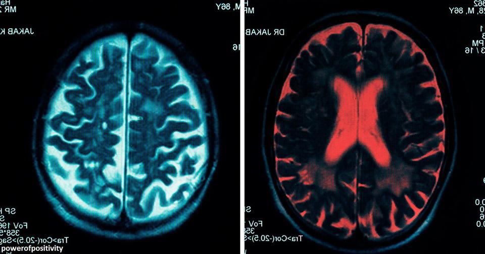 13 привычек, которые способны снизить активность вашего мозга