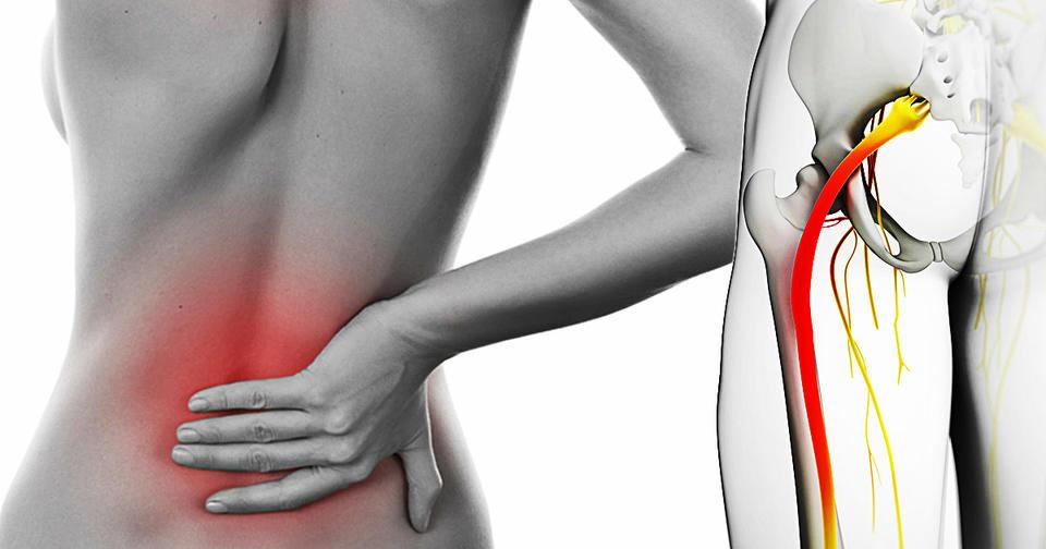 Вот 6 растяжек, чтобы навсегда забыть о боли седалищного нерва
