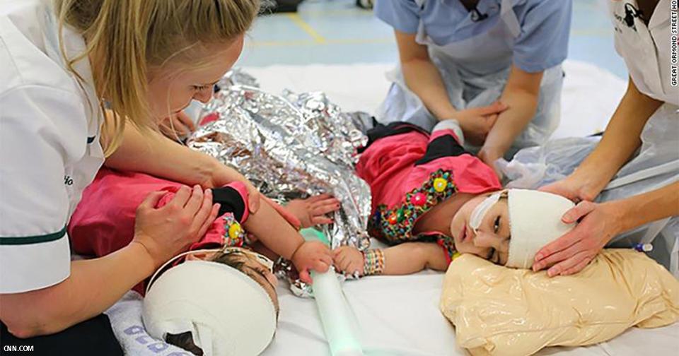 Сиамские близнецы со сросшимися головами пережили 50 часовую операцию