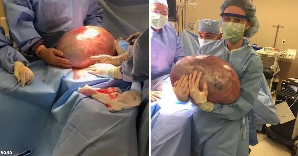 Врачи говорили ей, чтобы она похудела, а причиной оказалась 22 килограммовая киста яичника