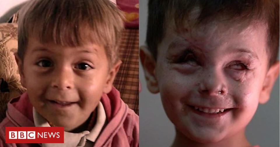 Лицо мальчика, которое отражает всю трагедию и ужас войны в Сирии