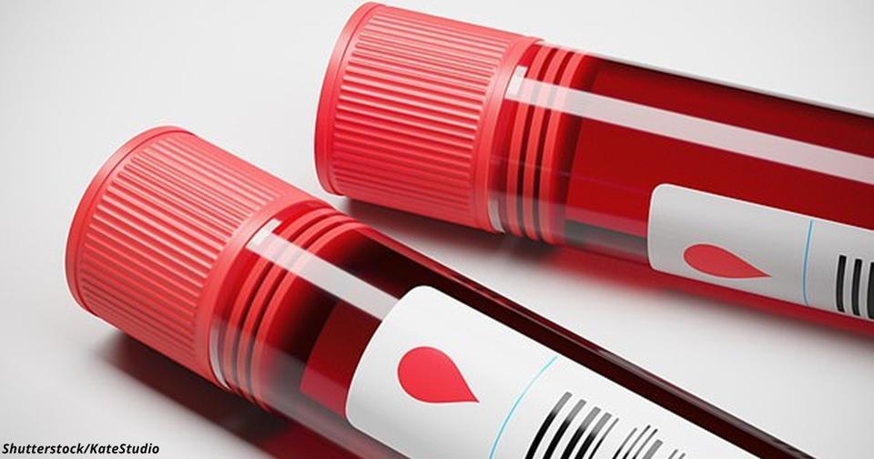 Умрёте ли вы в ближайшие 10 лет? Вот-вот будет анализ крови, дающий ответ с точностью 80%