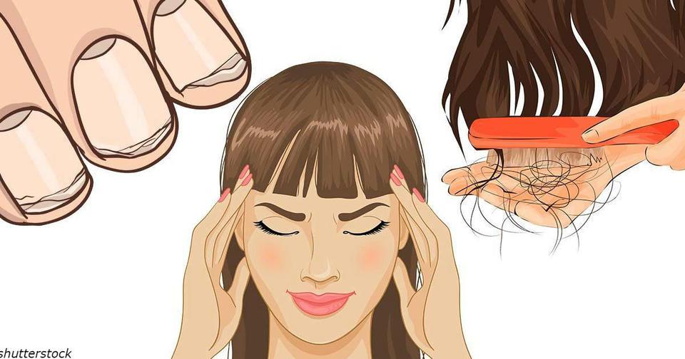 5 признаков хронического дефицита витаминов у женщин