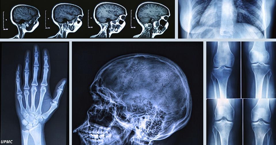 В чём разница между КТ, МРТ и флюорографией