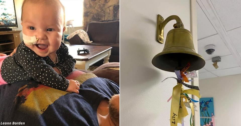 После тяжёлой битвы с раком мозга 4 месячный ребёнок победил его. Есть видео
