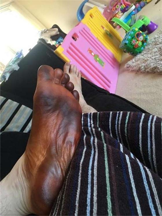 Увидев, что его нога почернела, парень бросился искать симптомы в интернете. Виновницей происшествия оказалась жена